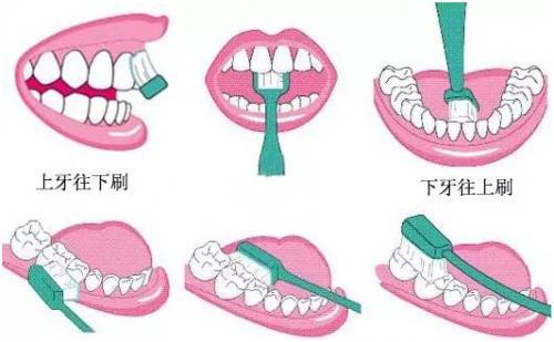 【推介】暑假到了,孩子矫正牙齿的好时机,千万别错过!
